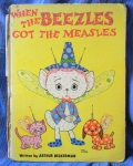 Beezles got the Measles